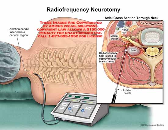 amicus,surgery,radiofrequency,neurotomy,ablation,needle,cervical,region,nerve,root,medial,branch,facet
