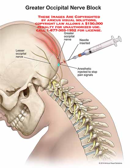 amicus,injection,greater,occipital,nerve,block,needle,lesser,anesthetic,pain,signals
