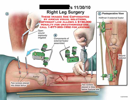amicus,surgery,screws,leg,femur,wound,copiously,irrigated,components,external,fixator,assembled,tibia,screws,fracture,wound,sutured,Hoffman,II
