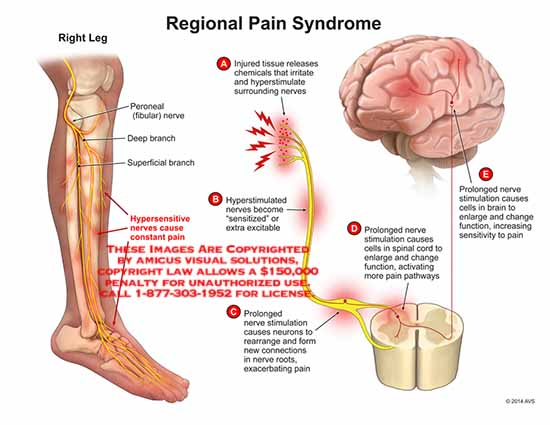 amcius,injury,peroneal,fibular,nerve,deep,branch,superficial,hypersensitive,stimulation,prolonged,neurons,connections,root,spinal,cord,cells,pathways,brain,enlarge,sensitiviity
