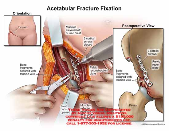 amicus,injury,acetabular,fracture,fixation,incision,fragments,tension,wire,muscles,iliac,crest,cortical,screw,pelvic,recontruction,plate,joint,capsule,femur,recon