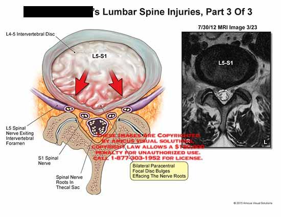 amicus,injury,l4,l5,spinal,nerve,intervertebral,foramen,s1,nerve,roots,thecal,sac,bilateral,paracentral,focal,disc,bulges,mri