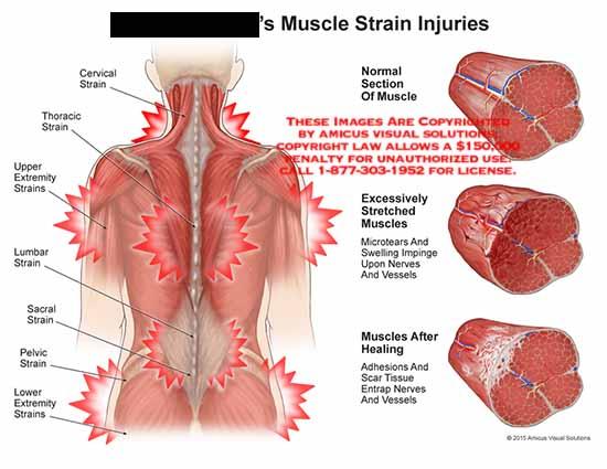 Muscle Strain 87