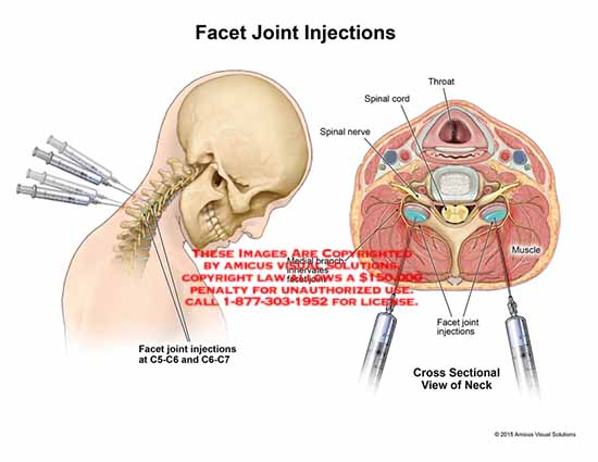 amicus,injection,facet,joint,C5-C6,C6-C7,throat,spinal,cord,nerve,muscle,medial,branch