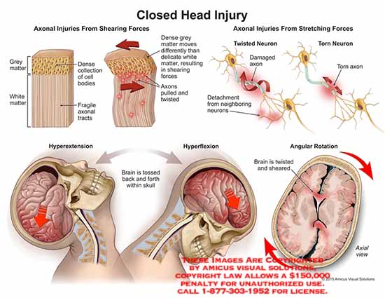 amicus,injury,closed,head,grey,matter,white,matter,dense,collection,cell,bodies,axonal,tracts,shearing,forces,twisted,axons,town,hyperextension,brain,tossed,back,forth,hyperflexion,angular,rotation