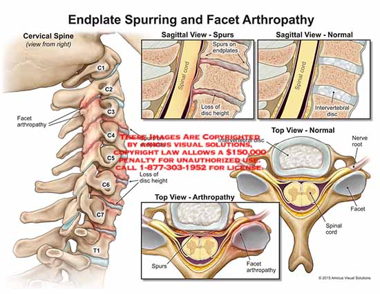 amicus,injury,endplate,spurring,facet,arthropathyC1,C2,C3,C4,C5,C6,C7,T1,spinal,cord,disc,height,loss,spur,intervertebral,nerve,root
