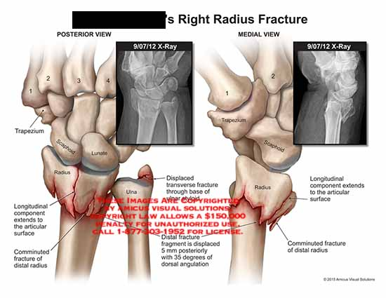 amicus,injury,fracture,radius,hand,X-Ray,trapezium,scaphoid,lunate,ulna,longitudinal,component,articular,surface,comminuted,fracture,distal,fragment,dorsal,angulation,displaced,transverse,styloid