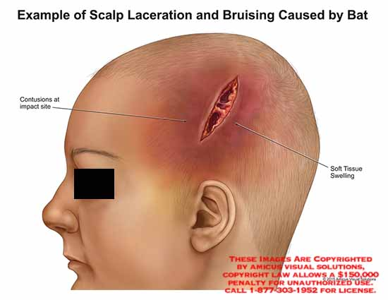 amicus,injury,skull,scalp,head,bruising,laceration,bat,contusions,impact,soft,tissue