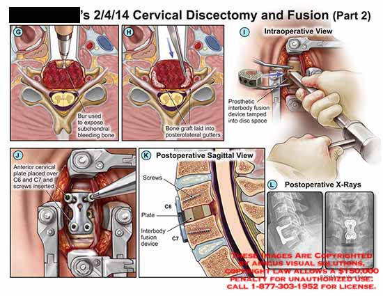 amicus,surgery,cervical,discectomy,fusion,bur,subchondral,bleeding,bone,graft,posterolateral,gutters,prosthetic,interbody,fusion,tamped,disc,spaceplate,C6,C7,screws,device,X-Ray