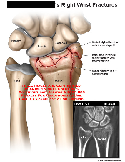 amicus,injury,right,wrist,fracture,pisiform,lunate,scaphoid,radius,ulna,radial,styloid,intra-articular,fragmentation,Y,configuration,CT