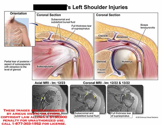 amicus,injury,coronal,section,subacromial,subdeltoid,bursal,fluid,supraspinatus,subscapularis,tear,partial,retraction,glenoid,mri,axial,coronal,frayed,labrum,biceps,tenisynovitis