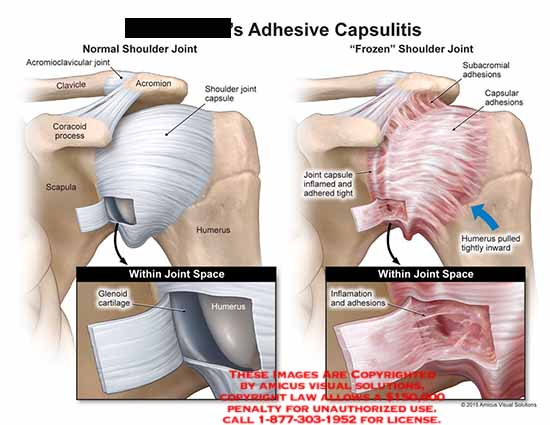 amicus,injury,shoulder,adhesive,capsulitis,clavicle,acromion,coracoid,process,scapula,shoulder,joint,capsule,humerus,glenoid,cartilage,frozen,subacromial,inflamed,adhesions,pulled,tightly,inward,space,inflammation