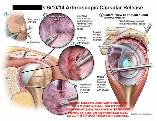 amicus,surgery,arthroscopic,shavers,arthroscope,clavicle,acromion,scapula,humerus,extensive,bursal,tissue,adhesions,subacromial,space,synovitis,frayed,coracoacromial,ligament,biceps,tendon,gleno,humeral,