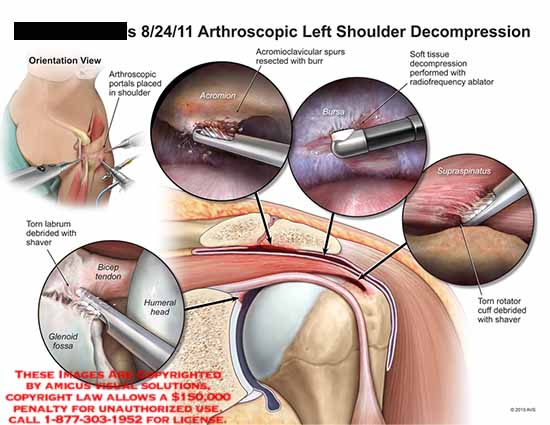 amicus,surgery,arthroscopic,shoulder,decompression,portals,torn,labrum,debrided,shaver,bicep,tendon,glenoid,fossa,humeral,head,acrominoclavicular,spurs,resected,burr,soft,tissue,decompression,radiofrequency,ablator,rotator,cuff,shaver