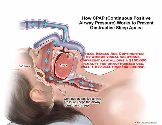 amicus,anatomy,CPAP,continuous,positive,airway,pressure,prevent,obstructive,sleep,apnea,tongue,soft,palate,open,sleep