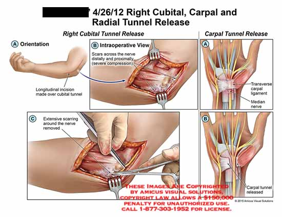amicus,surgery,cubital,carpal,radial,tunnel,release,scars,nerve,compression,severe,transverse,ligament,median,extensive