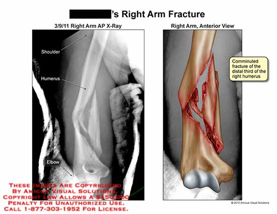 amicus,injury,fracture,arm,shoulder,humerus,elbow,comminuted,distal,x-ray