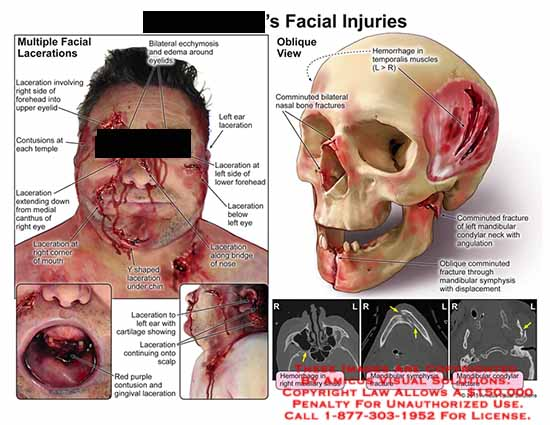 amicus,injury,facial,lacerations,contusion,temple,medial,canthus,eye,mouth,chin,ear,cartilage,scalp,gingival,hemorrhage,temporalis,muscle,comminutedmbilateral,nasal,bone,comminuted,mandibular,symphysis,isplacement,maxillary,sinus,condylar
