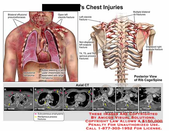amicus,injury,bilateral,effusions,pneumothorax,pneumothoraces,clavicle,fracture,mediastinal,hematoma,bleeding,non,displaced,scapula,multiple,rib,t4,t5,t6,spinous,processes,axial,ct,