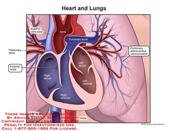 amicus,anatomy,heart,lung,superior,vena,cava,aorta,pulmonary,trunk,right,atrium,ventricle,left,foramen,ovale,ateriovenous,communication,vein,inferior