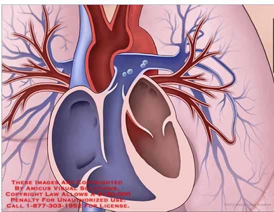 amicus,anatomy,heart,lung,superior,vena,cava,aorta,pulmonary,trunk,right,atrium,ventricle,left,foramen,ovale,ateriovenous,communication,vein,inferior