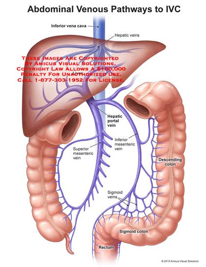 amicus,anatomy,abdominal,venous,pathways,IVC,inferior,vena,cava,liver,hepatic,veins,portal,mesenteric,superior,descending,colon,sigmoid,rectum,