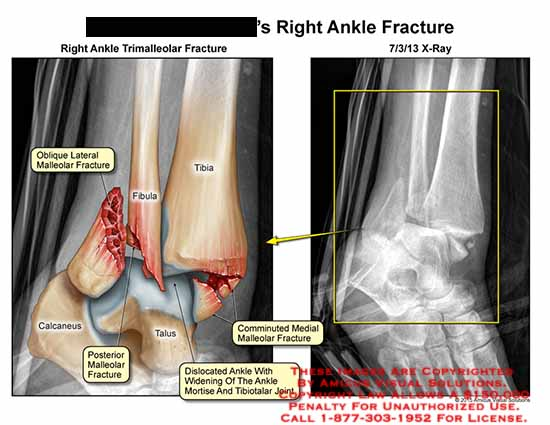 amicus,injury,ankle,trimalleolar,fracture,x-ray,fibula,tibia,talus,calcaneus,talus,oblique,mortise,tibiotalar,joint,comminuted,medial,malleolar,fracture
