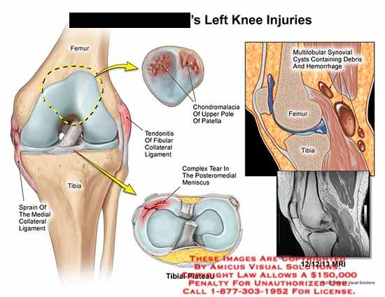 amicus,injury,femur,tibia,sprain,medial,collateral,ligament,tendonitis,fibular,collateral,chondromalacia,upper,pole,patella,complex,tear,posteromedial,meniscus,tibial,plateau,multiobular,synovial,cysts,hemorrhages,MRI