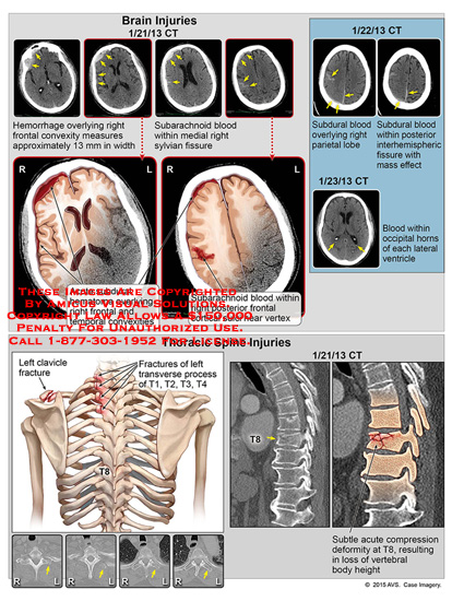 amicus,injury,brain,hemorrhage,frontal,convexity,subarachnoid,blood,right,sylivan,fissure,subdural,blood,parietal,lobe,interhemispheric,mass,effect,horns,lateral,ventricle,clavicle,transverse,process,fracture,T1,T2,T3,T4,CT,subtle,acute,compression,deformity,T8,vertebral,height,