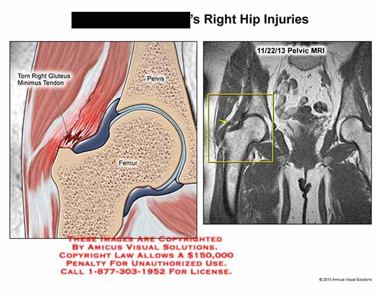 amicus,injury,torn,right,gluteus,minimus,tendon,pelvis,femur,mri