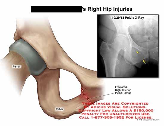 amicus,injury,femur,pelvis,x-ray,fractured,right,inferior,pubic,ramus