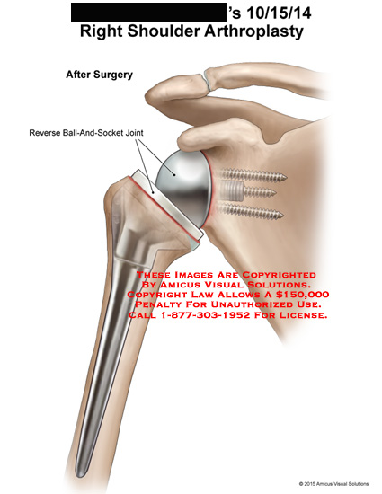 amicus,surgery,shoulder,arthroplasty,reverse,ball-and-socket,joint,humerus,scapula,