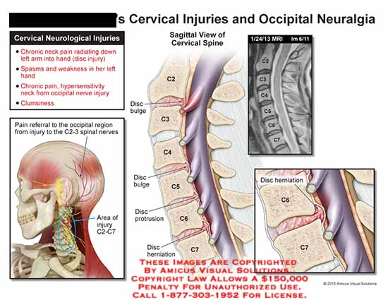 amicus,injury,cervical,neurological,chronic,pain,neck,spasms,weakness,hypersensitivity,occipital,nerve,clumsiness,pain,referral,c2,c3,c2,c3,c4,c5,c6,c7,mri,herniation