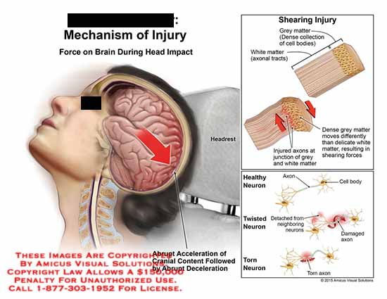 amicus,injury,shearing,grey,matter,cell,bodies,axonal,tracts,healthy,twisted,torn,axon,neuron,abrupt,acceleration,cranial,abrupt,deceleration,impact,head,brain