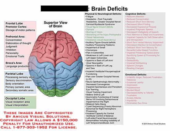 amicus,injury,frontal,lobe,parietal,occipital,premotor,cortex,area,broca