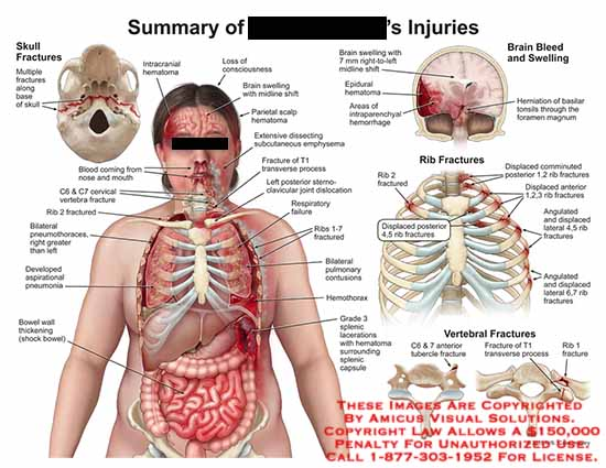 amicus,injury,skull,fractures,base,blood,nose,mouth,intracranial,hematomas,c6,c7,vertabrae,fractures,rib,2,aspirational,pneumonia,bowel,wall,thinckening,brain,bleed,swelling,intraparenchyal,foramen,magnum,midline,shift,contusions,hemothorax,splenic,capsule,tubercle