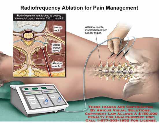 amicus,surgery,radiofrequency,heat,destroy,medial,branch,nerve,t12,l1,l2,nerve,root,ablation,needle,inserted,lower,lumbar,region