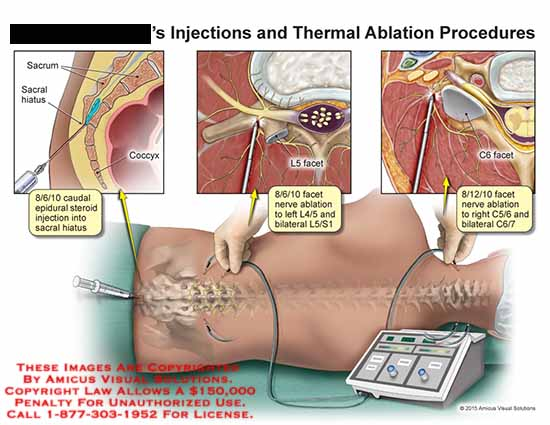 amicus,injection,thermal,ablation,procedures,sacrum,hiatus,coccyx,epidural,steroid,L5,facet,bilateral,C5/6,C6/7,L4/5,L5/S1