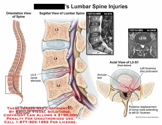 amicus,injury,lumbar,spine,L5-S1,disc,protrusion,posterior,displacement,nerve,roots,L3,L4,L5,S1,canal,stenosis,axial,annular,tear,foramina,