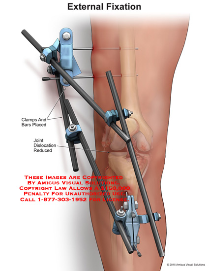 amicus,anatomy,external,fixation,clamps,bars,joint,displocation,reduced,tibia,femur,