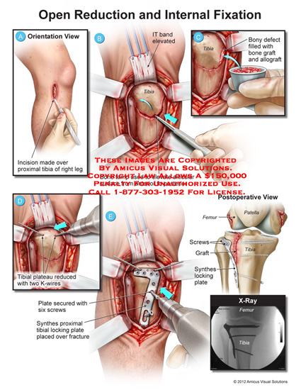 amicus,surgery,open,reduction,internal,fixation,proximal,tibia,leg,IT,band,bone,tamp,articular,surface,graft,allogradt,plateau,K-wire,screws,synthes,plate,locking,patella,femur,x-ray,