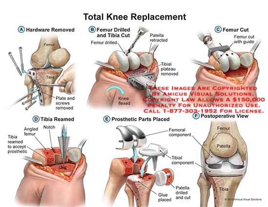 amicus,surgery,total,knee,replacement,hardware,femur,tibia,plate,screw,drilled,patella,plateau,reamed,notch,prosthetic,femoral,component,glue,