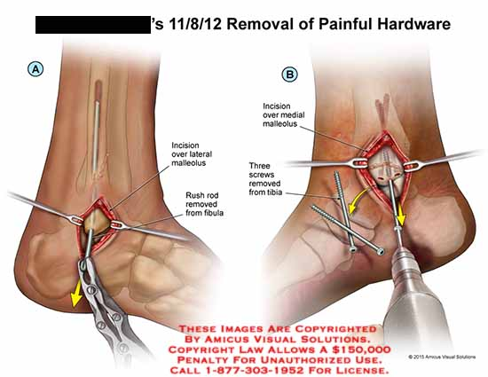 amicus,surgery,removal,painful,hardware,lateral,malleolus,rush,rod,fibula,medial,screws,tibia,