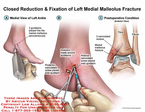 AMICUS Illustration of amicus,surgery,closed,reduction,fixation ...