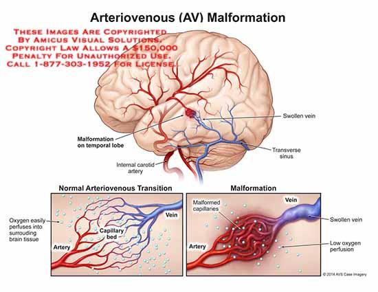 amicus,injury,arteriovenous,AV,malformation,temporal,lobe,internal,carotid,artery,oxygen,perfuses,brain,tissue,swolen,transverse,sinus,malformed,capillaries,
