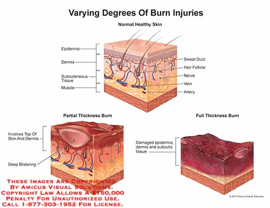 amicus,anatomy,injury,degrees,burn,epidermis,dermis,subcutaneous,tissue,muscle,sweat,duct,hair,folicle,nerve,vein,artery,deep,blistering,normal,healthy,skin,partial,thickness,full,