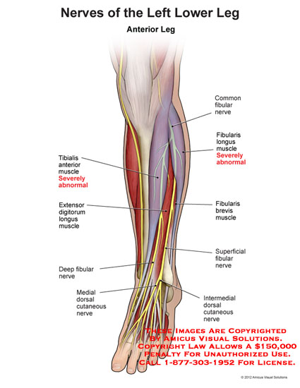 amicus,injury,anatomy,nerves,lower,leg,tibialis,anterior,muscle,abnormal,extensor,digitorum,deep,fibular,medial,dorsal,cutaneous,common,fibularis,longus,brevis,superficial,intermedial,foot,