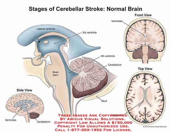 amicus,anatomy,stages,cerebellar,stroke,normal,brain,lateral,ventricle,3rd,4th,cerebellum,skull,brain,stem,