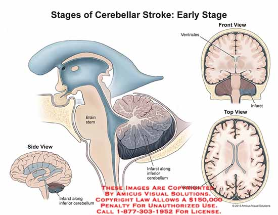 amicus,injury,stages,early,cerebellar,stroke,brain,stem,ventricles,ventricle,infarct,cerebellum,