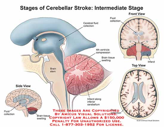 amicus,injury,stages,cerebellar,stroke,intermediate,cerebral,fluid,collection,4th,ventricle,compression,brain,tissue,swelling,infarct,